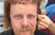 Veja como foi o processo de criação da maquiagem da morte de Abraham em The Walking Dead